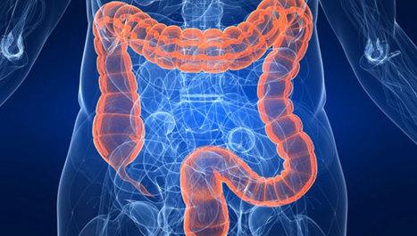 Vitaminom D protiv progresije raka debelog crijeva