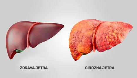 Liječnici Su Nazvali Korisnim I štetnim Proizvodima Za Crijeva  Orašasto Voće 2021